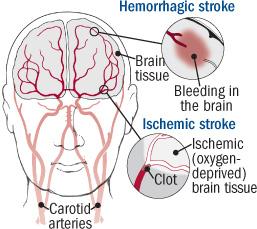 11 ways to prevent stroke - Harvard Health