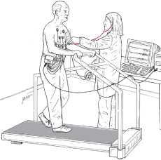 illustration of preparation for exercise stress test