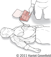 illustration showing use of public defibrillator