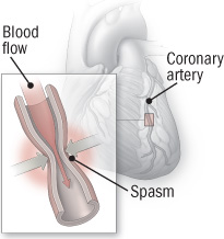 illustration of coronary artery vasospasm
