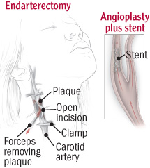 illustration of endarterectomy procedure to clear carotid artery