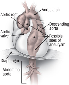 illustration of heart showing location of the thoracic aorta
