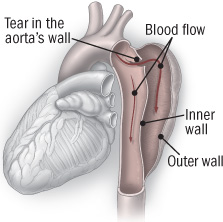 illustration of heart showing an aneurysm dissection