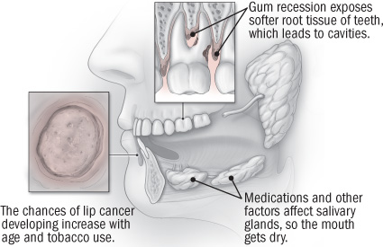 illustration of mouth showing potential trouble spots