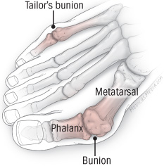 illustration of foot showing tailor's bunion