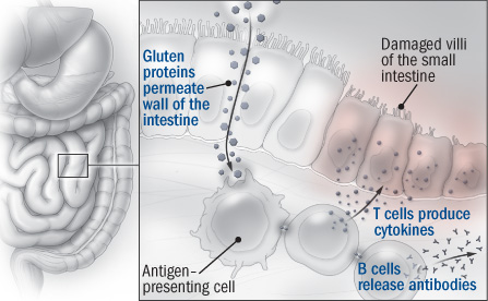Illustration showing how celiac disease affects the small intestine