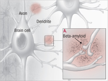 illustration of brain cell showing activity of beta amyloid