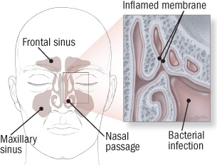 frequent sinus infections in adults