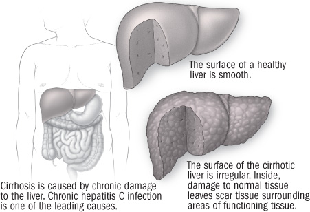 illustration of liver showing damage from cirrhosis