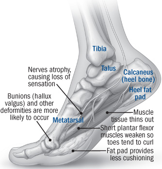 illustration of foot showing problems that can occur with age