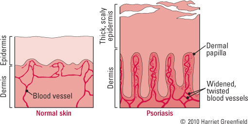 The patches and plaques of psoriasis result from a dysfunctional interaction between skin cells and white blood cells 2