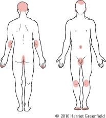 Psoriasis: More than skin deep - Harvard Health