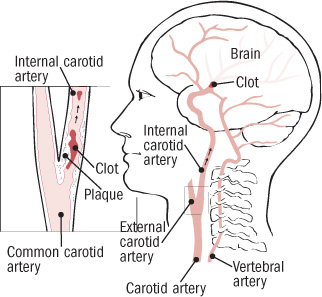 The crucial, controversial carotid artery Part I: The artery in