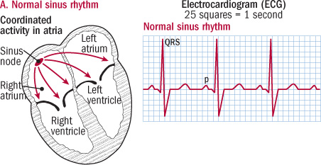 illustration of heart in normal rhythm and ECG reading