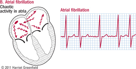 illustration of heart in atrial fibrillation and ECG showing irregular pattern