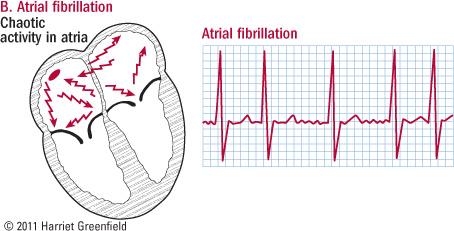illustration of heart in atrial fibrillation and ECG showing irregular pattern