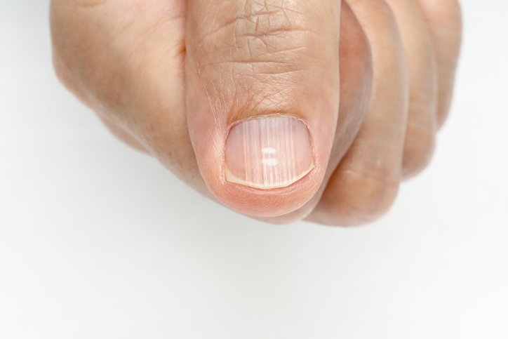 Do nail changes signify a health problem? - Harvard Health