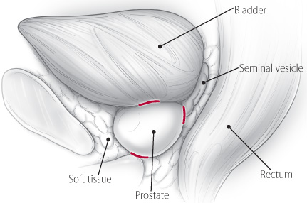 Positive Surgical Margins Following Radical Prostatectomy