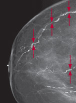 image of mammogram showing calcifications in blood vessels