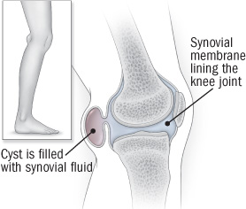 illustration of knee joint showing Baker's cyst