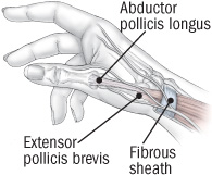 tendon trouble in the hands de quervain s tenosynovitis and trigger
