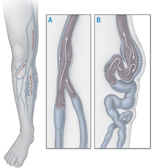 illustration of normal leg vein and varicose vein
