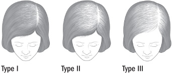 Treating female pattern hair loss - Harvard Health