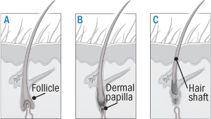 Treating female pattern hair loss - Harvard Health