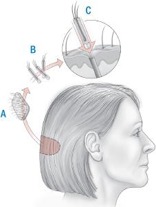 Illustration of hair transplant procedure
