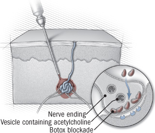 illustration of skin cross-section showing botox procedure  acetylcholine  is a neurotransmitter that activates sweat glands