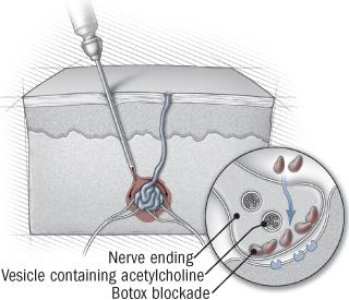 illustration of skin cross-section showing botox procedure
