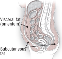 illustration of abdomen showing visceral and subcutaneous fat