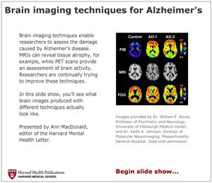 Brain imaging techniques for Alzheimer s disease Harvard Health