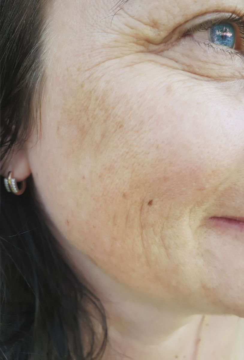 Unmasking the causes and treatments of melasma - Harvard Health