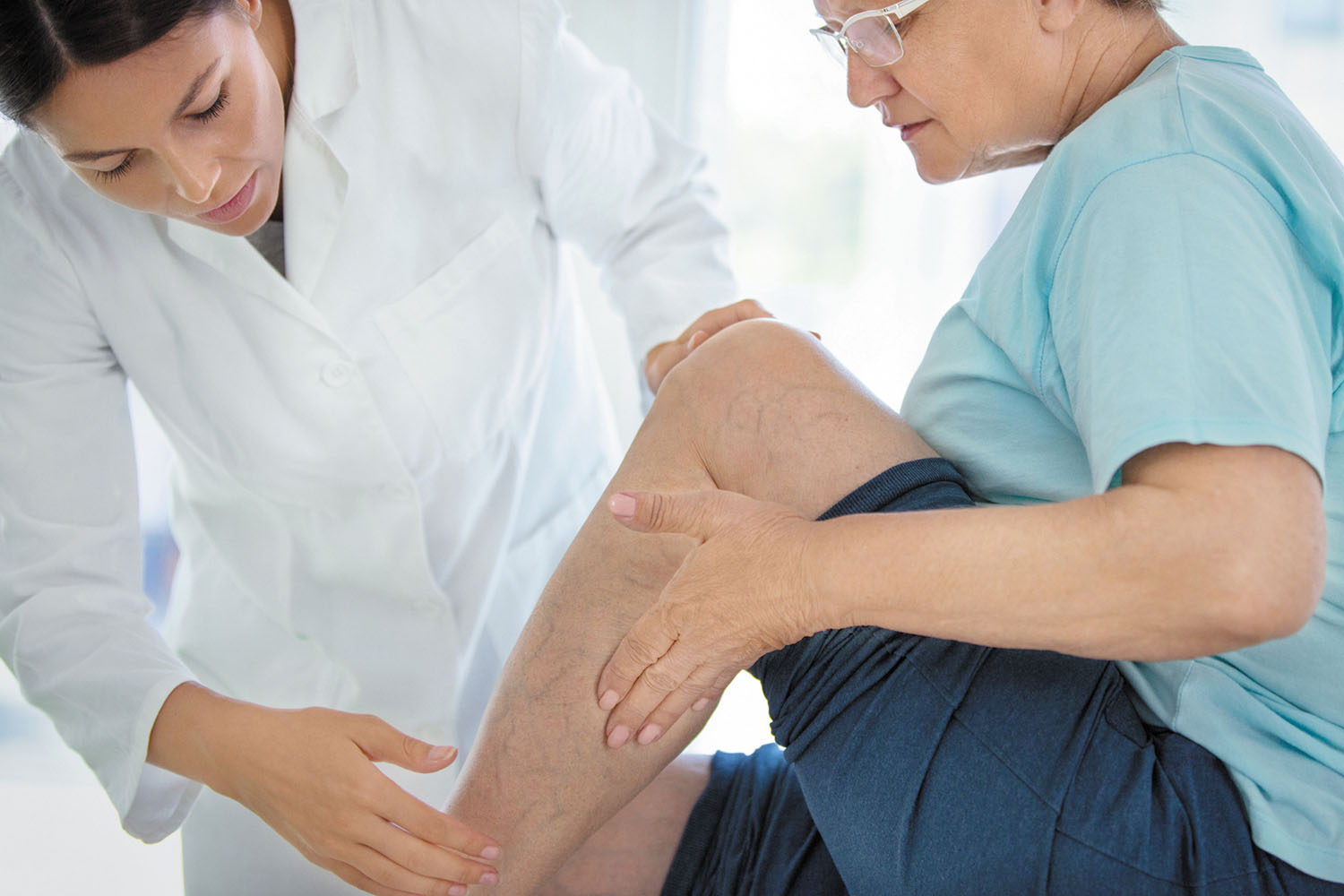 Varicose veins: Clues to a deeper problem? - Harvard Health