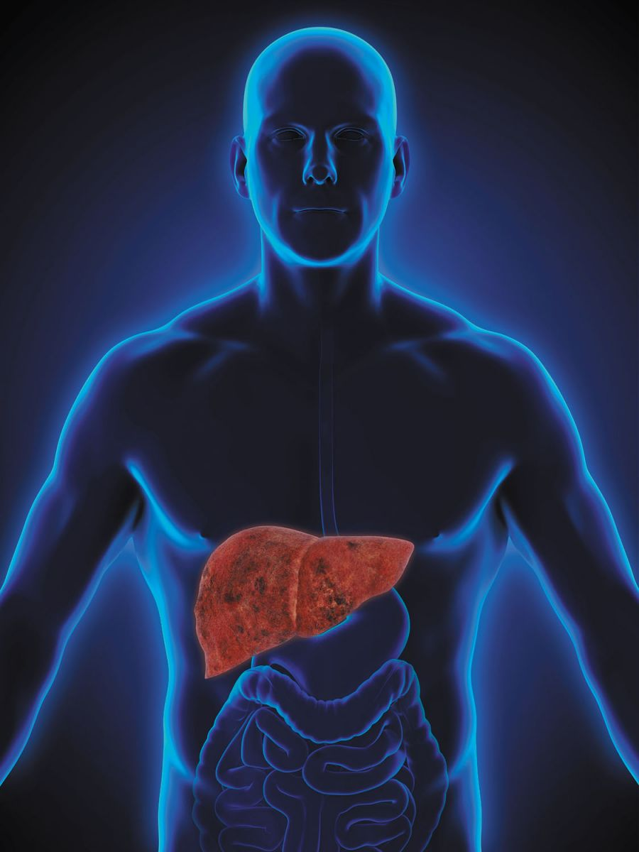 The skinny on fatty liver disease - Harvard Health