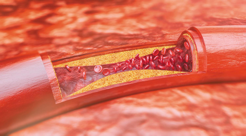 Avoiding atherosclerosis: The killer you can't see - Harvard Health