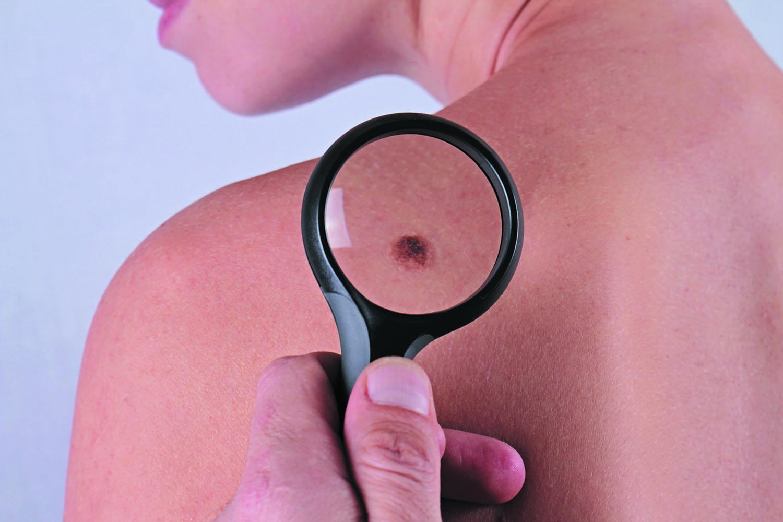 Most melanomas start as new spots