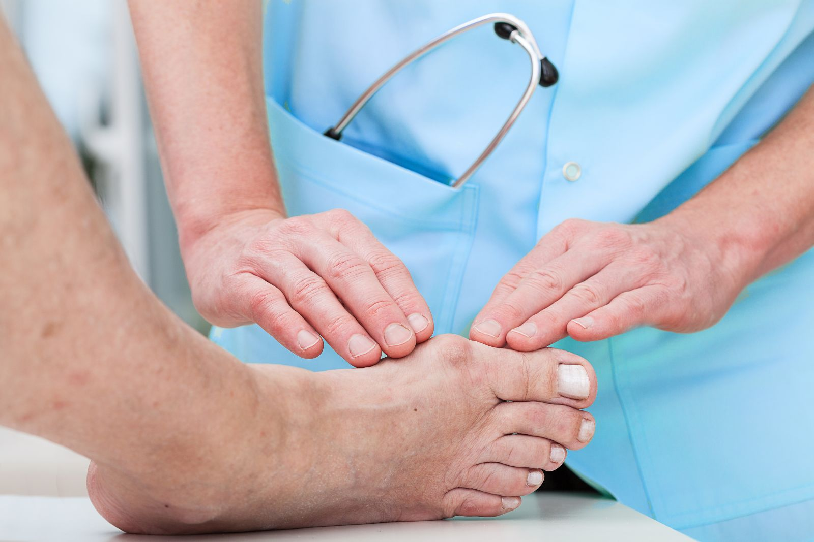 What to do about bunions - Harvard Health