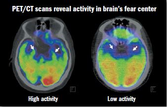 Uncovering the link between emotional stress and heart