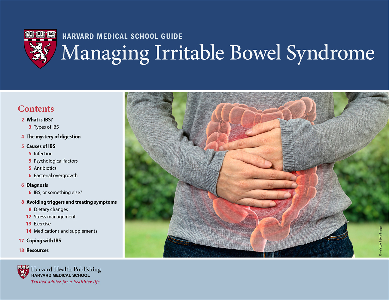 Managing Irritable Bowel Syndrome Cover