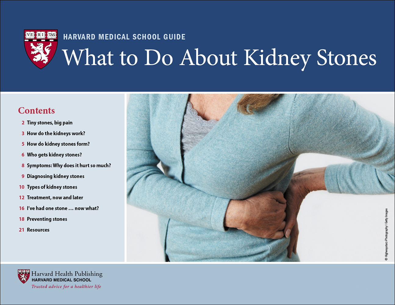 What to Do About Kidney Stones Cover
