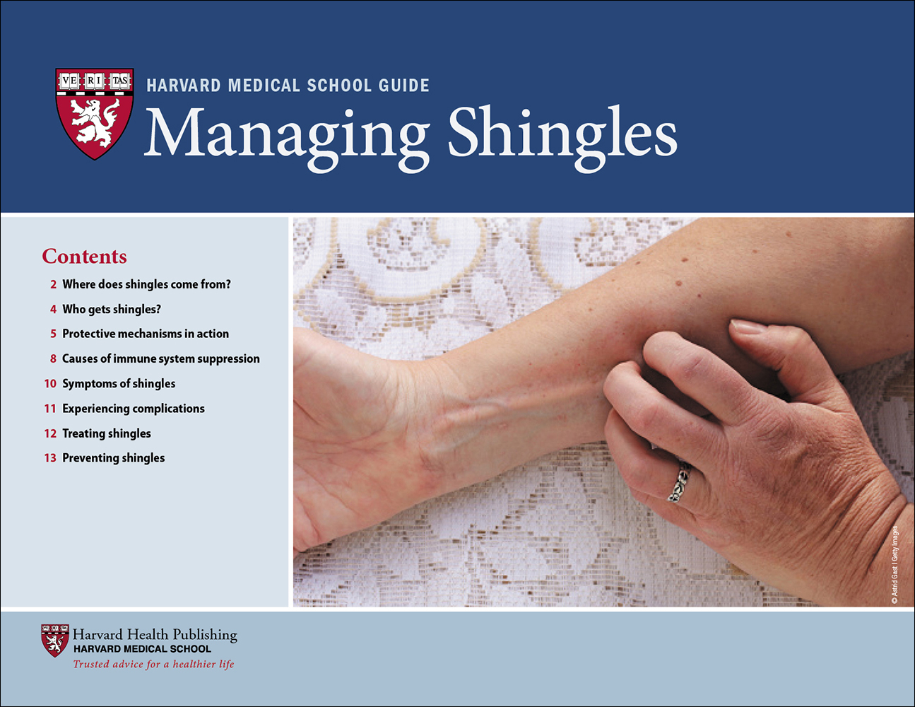 Managing Shingles Cover