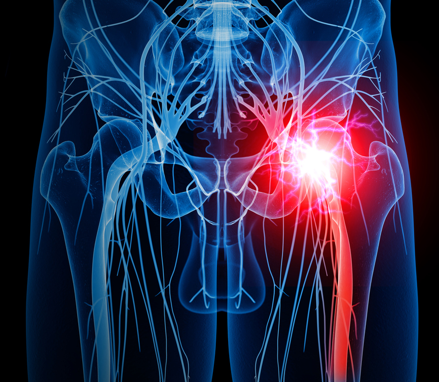 Ask Dr  Rob about piriformis syndrome - Harvard Health