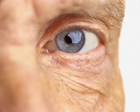 Diabetic retinopathy: Understanding diabetes-related eye disease and vision loss featured image