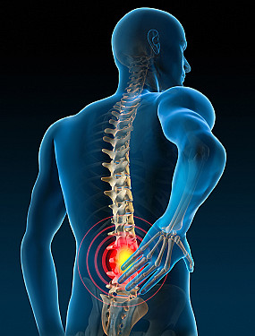 """Pain and neuromodulation: What's all the """"buzz"""" about? featured image"""