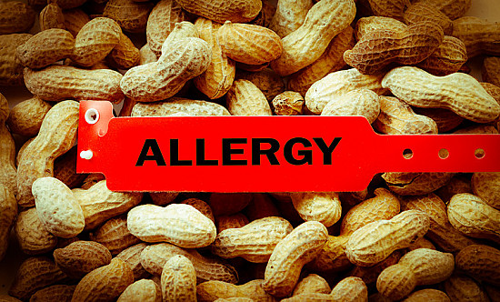 Peanut allergy: A new medicine for children may offer protection featured image