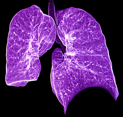 Autoimmune lung disease: Early recognition and treatment helps featured image