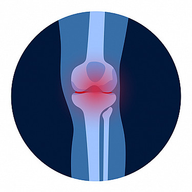 Stopping osteoarthritis: Could recent heart research provide a clue? featured image