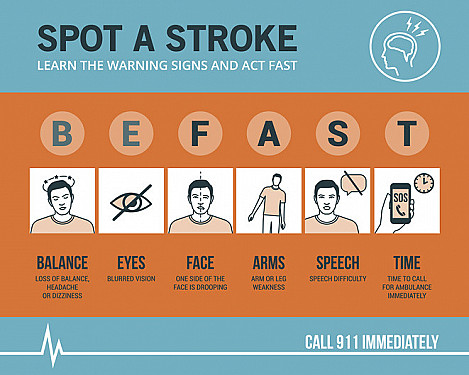 How to recognize a ministroke or stroke — and what to do featured image